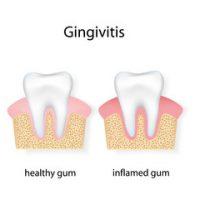 Gingivitis Inflamed Gum Comparison