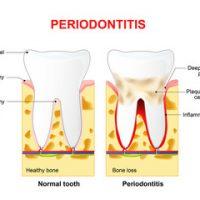 Periodontitis image